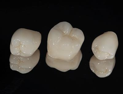 A set of three dental crowns, all made from non-metal materials