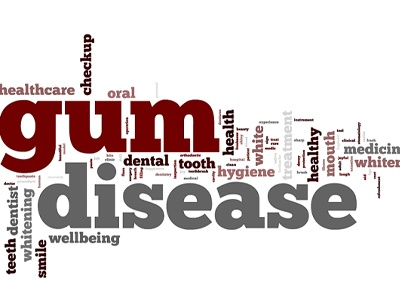 Words relating to gum disease at dentist.