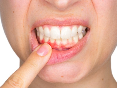 Woman pointing to inflamed gum tissue.