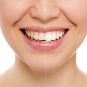 Teeth whitening at home or in our office is great.