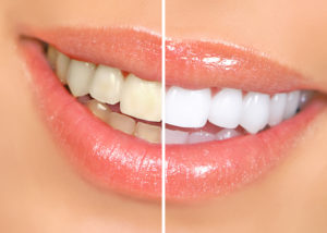 woman showing before and after whitening